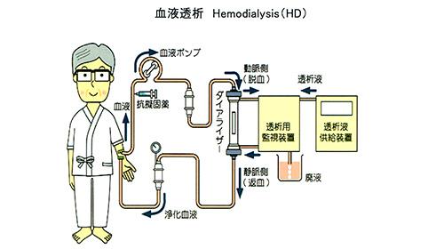 人工透析治療 Hemodia1ysis